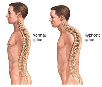 kyphotic spine