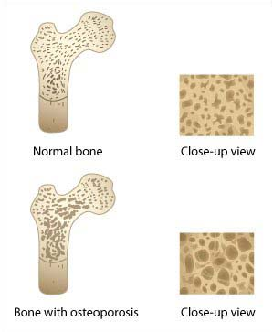 illustrations of normal bone and bone with osteoporosis